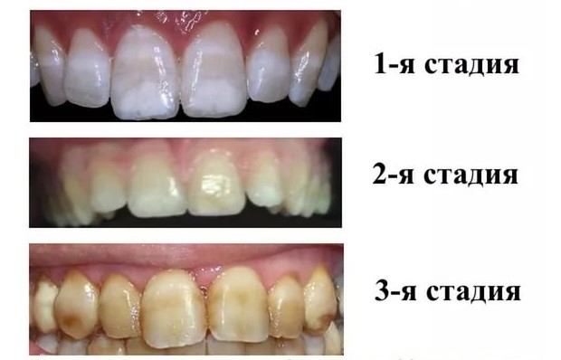 dental fluorosis Dental fluorosis occurs as a result of excess fluoride ingestion during tooth formation enamel fluorosis and primary dentin fluorosis can only occur when teeth are forming, and therefore fluoride exposure (as it relates to dental fluorosis) occurs during childhood.