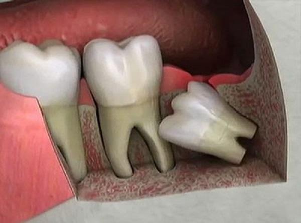 Требуется желанием как выровнять зубы после удаления зубов мужрости клип группы